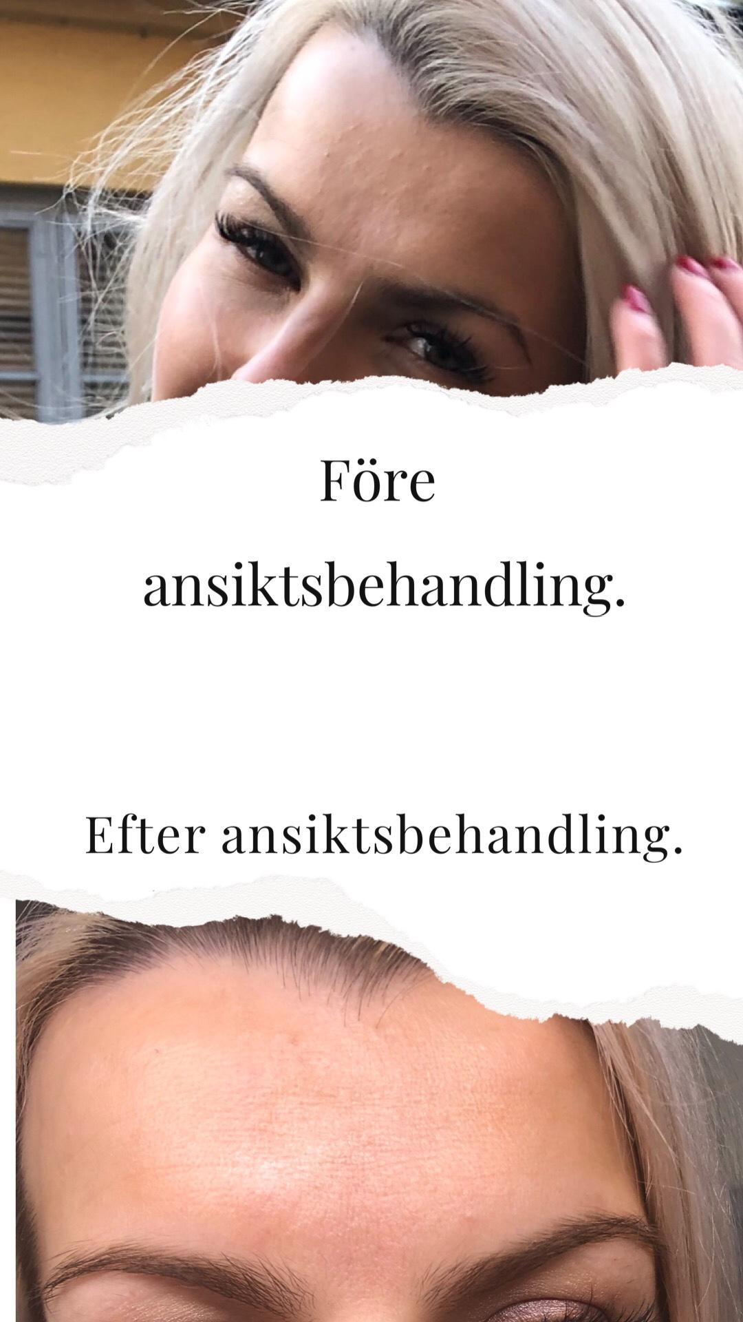 Perfekt ansiktsbehandling för gravida